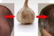 صورة علاج تساقط الشعر عند الرجال , اسهل طرق لعلاج الصلع الوراثي وتساقط الشعر