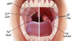 صور اعراض التهاب اللوزتين الفيروسي , اعرفي اعراض التهاب الحلق واللوزر