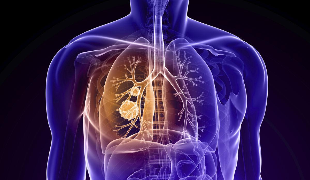 صورة علاج التهاب الرئة بالطب النبوي , تخلص من التهاب الرئة بالطب النبوي