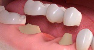 افضل تركيبات الاسنان , احسن انواع تركيبات الاسنان
