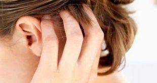 صورة لعلاج فروة الراس الملتهبة , افضل علاج بنتائج فعاله لعلاج التهابات فروة الراس