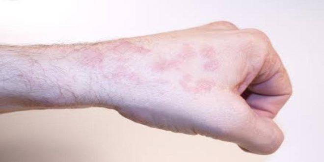صورة اعراض امراض السرطان , اهم الاعراض الناتجه عن السرطان 3901 1