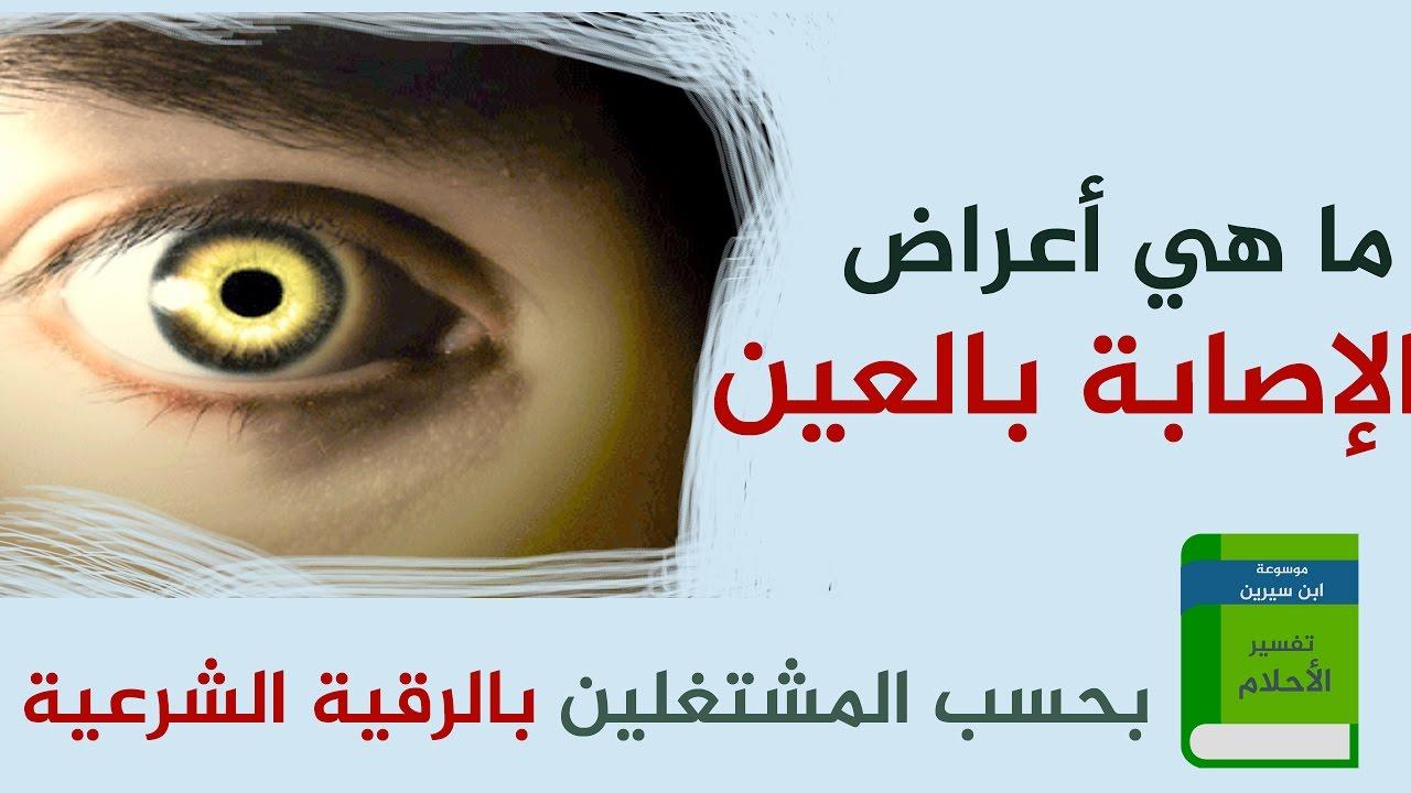 صورة من علامات العين , ماهى علامات الحسد والعين