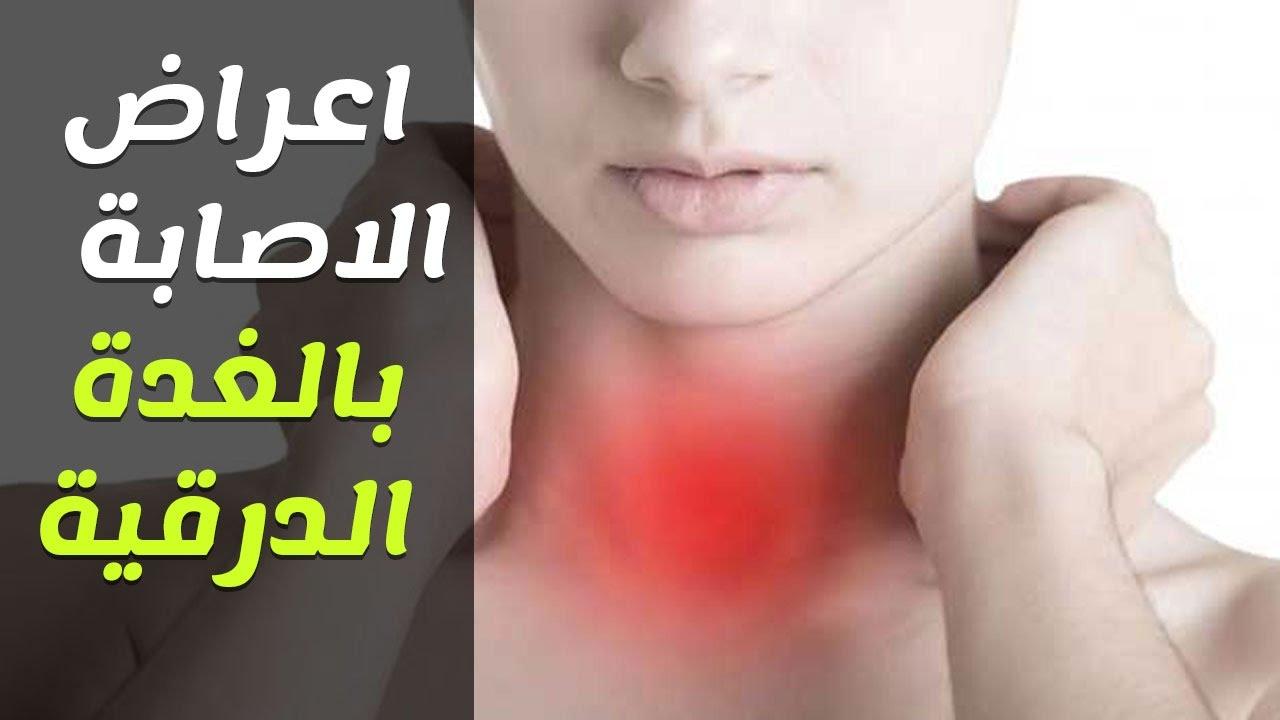 صورة اسباب مرض الغدة الدرقية , ما لاتعرفة عن سبب امراض الغدة الدرقية 2127 1