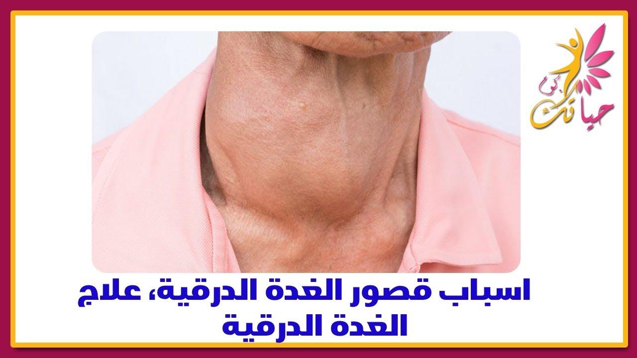 صورة اسباب مرض الغدة الدرقية , ما لاتعرفة عن سبب امراض الغدة الدرقية 2127 2