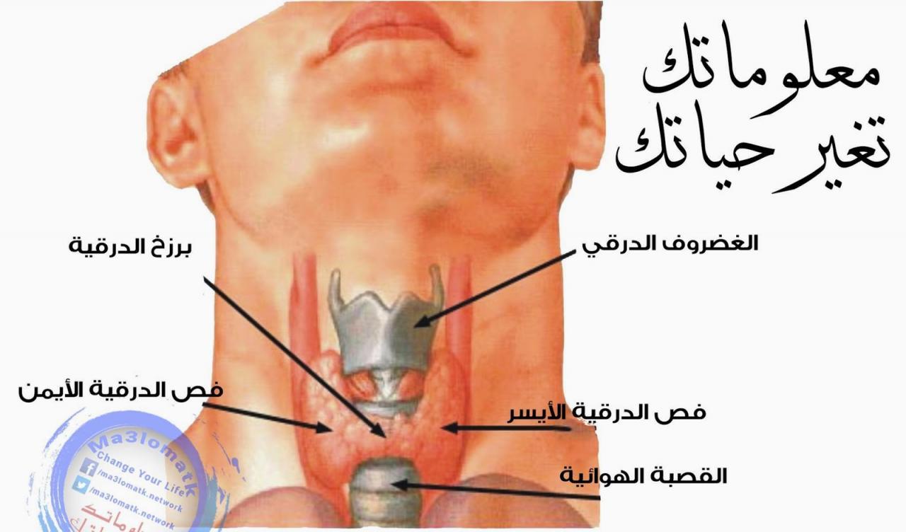 صورة اسباب مرض الغدة الدرقية , ما لاتعرفة عن سبب امراض الغدة الدرقية 2127