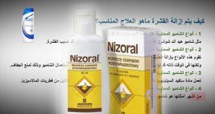 دواء لقشرة الشعر , تخلصي من قشرة الشعر بهذا الدواء