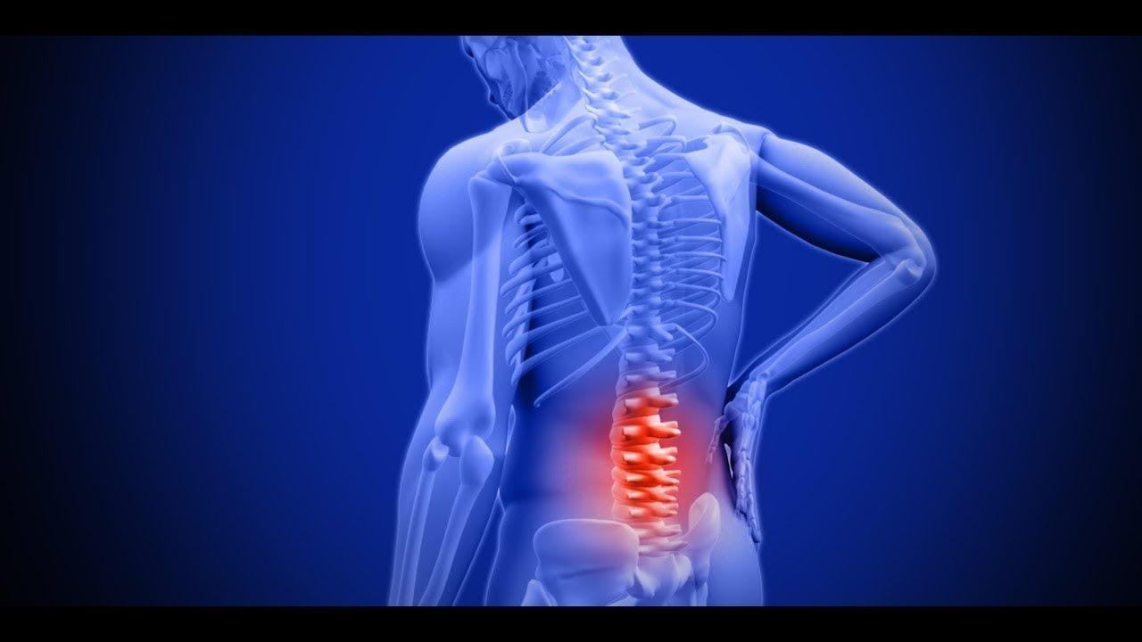 صورة علاج غضروف الرقبة بدون جراحة , تخلص من الانزلاق الغضروفي بلا جراحة