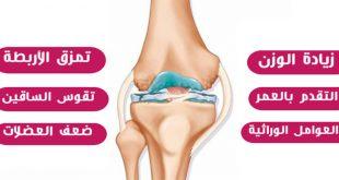 صورة علاج مفصل الركبة , لارتخاء العضلات
