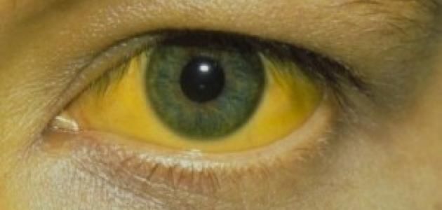 صورة مرض بوصفير هل هو معدي , اعراض واسباب مرض بوصفير