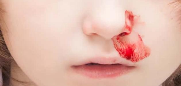صورة اسباب نزول دم من الانف , تعرف علي اسباب تؤدى لنزول الدم من الانف