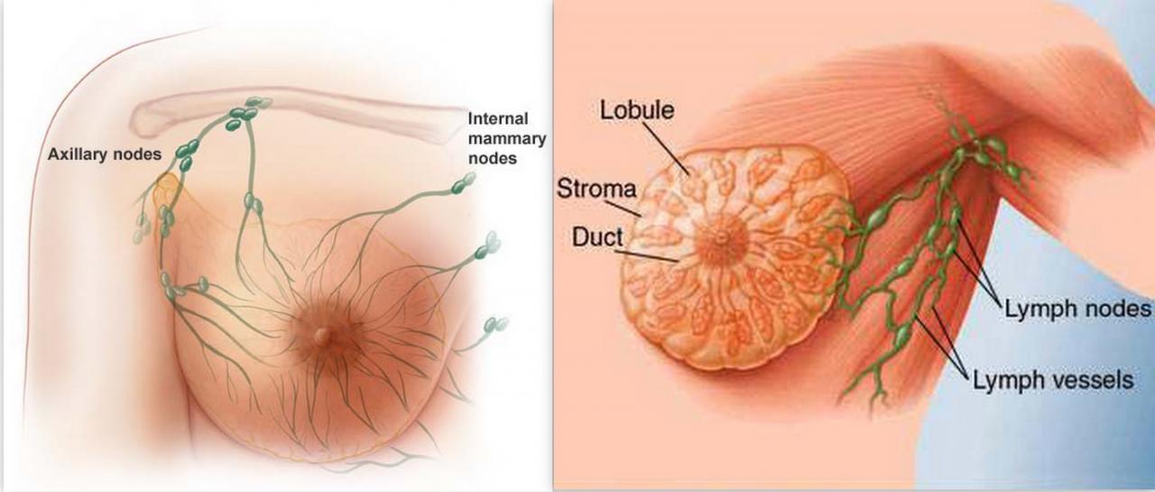 صورة اعراض مرض سرطان الثدي بالصور , علامات تظهر مرض سرطان 2161 7