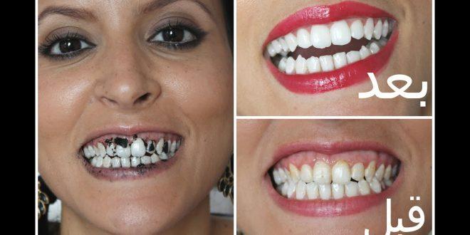 صورة وصفات طبيعية لتبييض الاسنان , اسنان بيضة بوصفات رهييبة