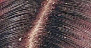 القضاء على قشرة الشعر نهائيا , قولي وداعا لقشره الشعر مع الحل السريع لدينا