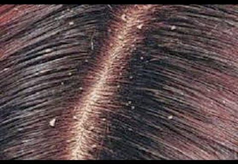 صور القضاء على قشرة الشعر نهائيا , قولي وداعا لقشره الشعر مع الحل السريع لدينا