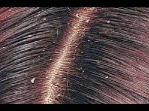 صورة القضاء على قشرة الشعر نهائيا , قولي وداعا لقشره الشعر مع الحل السريع لدينا
