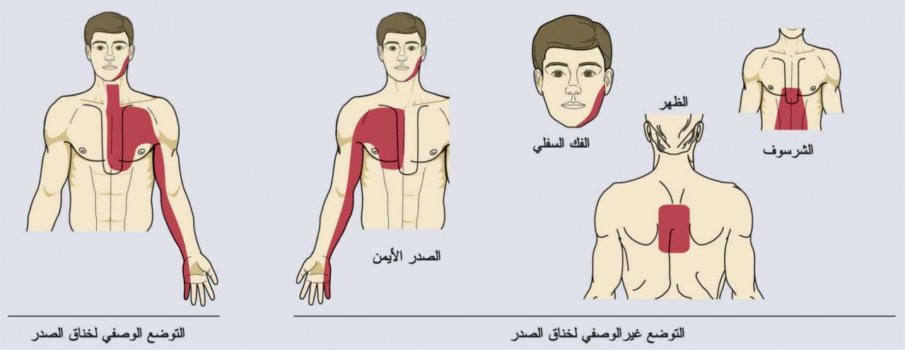 صورة اعراض مرض الاعصاب في القلب , امراض القلب واعراضها