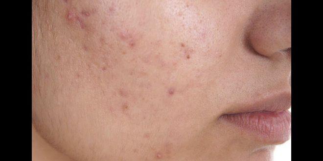 صورة الحبوب الدهنية في الوجه , اعرفي اسباب حبوب بشرتك وعالجيها
