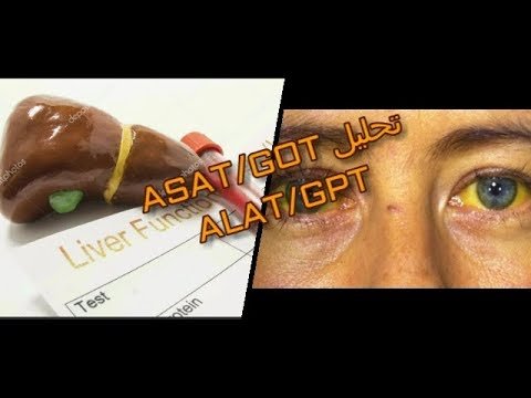 صورة ما هو تحليل gpt , لماذا نقوم بعمل هذا التحليل