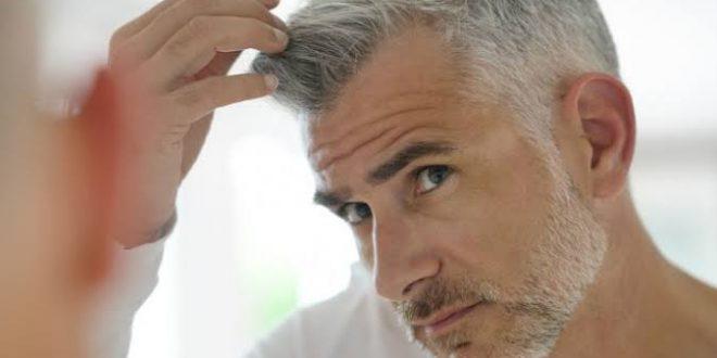 صورة حكم صبغ الشعر بالسواد للرجال , اعرف راي السنه النبوية في صبغ الشعر للرجال