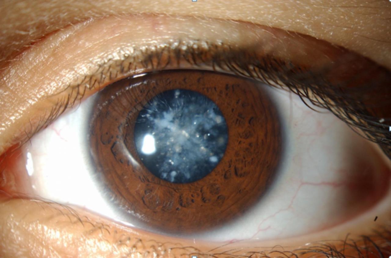 صورة الماء الابيض في العين وعلاجه , ماهو الماء الابيض وكيف يمكن التخلص منه
