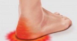 صورة الم اسفل القدم عند الاستيقاظ , اسبابه و علاجه