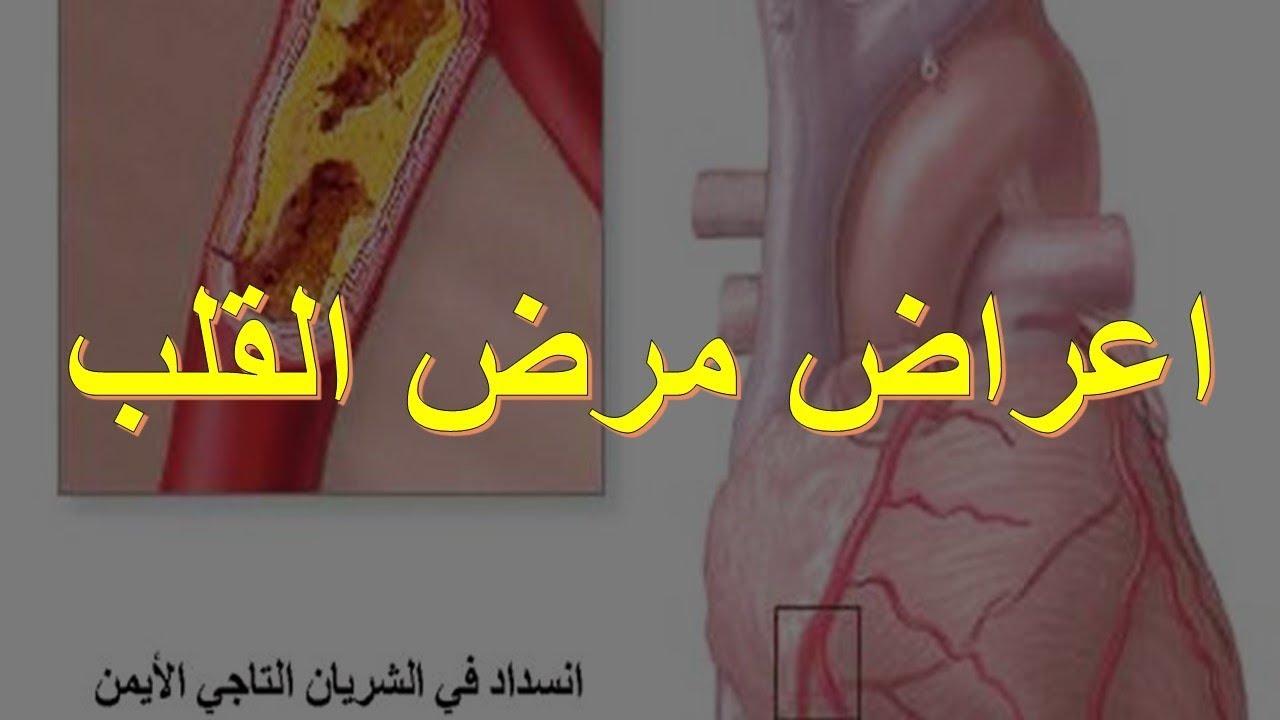 صورة اعراض تصلب الشرايين , اعراض لا تعرفها عن تصلب الشريين
