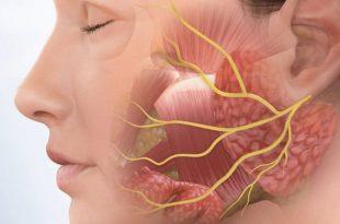 صورة علاج شلل العصب السابع بالاعشاب , عشبة مهمة للعلاج فى المنزل