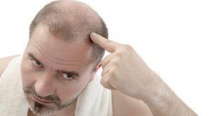 صورة تساقط الشعر للرجال , اسباب لا تعرفها عن الصلع