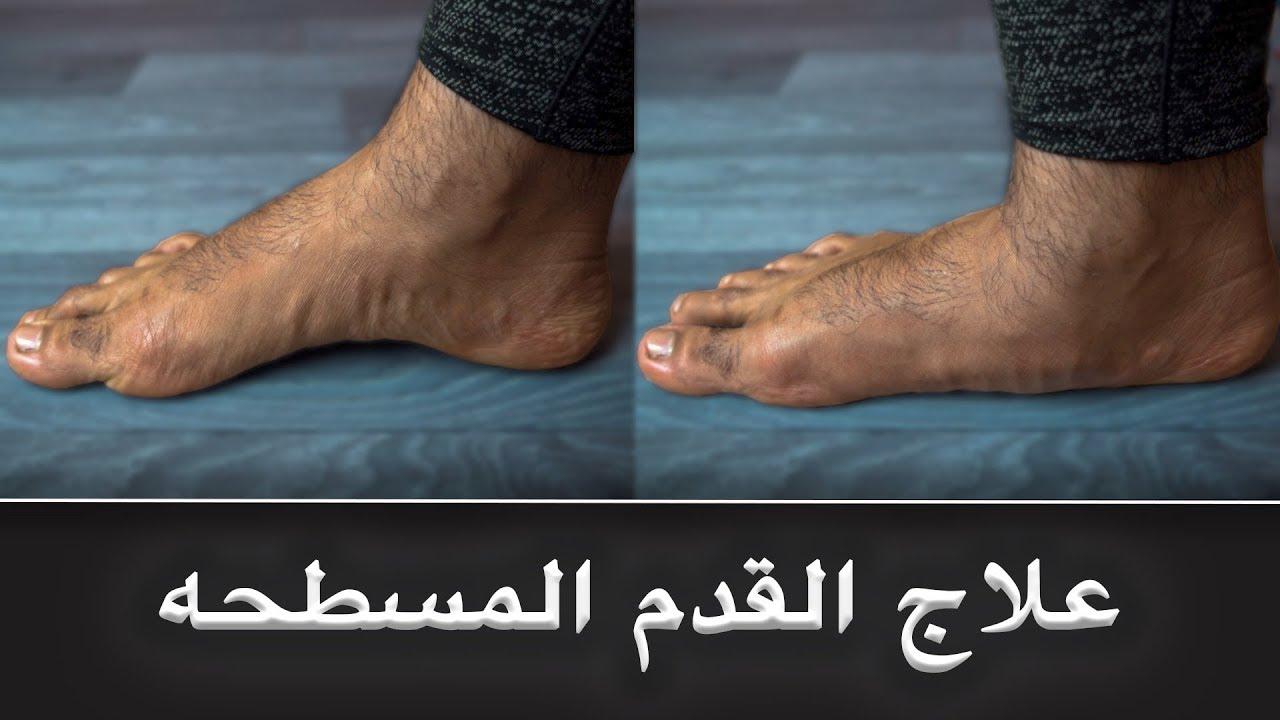 صورة علاج القدم المسطحة , اهم طرق علاج الفلات فوت