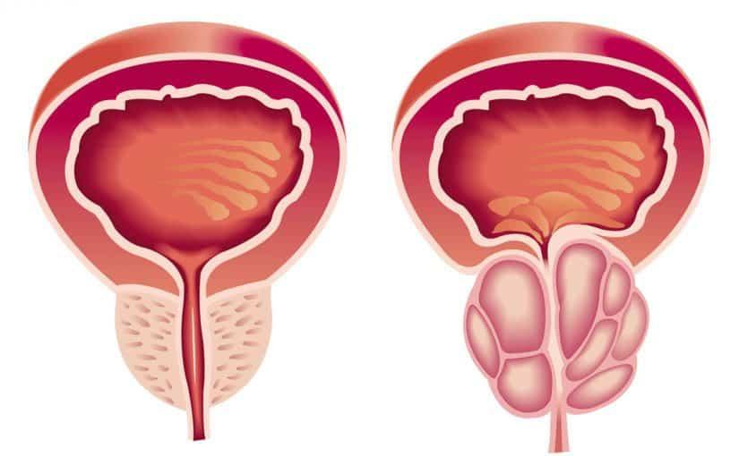 صورة علاج تضخم البروستاتا جابر القحطاني , اسباب و علاج البروستاتا