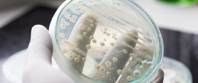 صورة اعراض الفطريات المهبلية , معلومات مهمه جدا عن الفطريات المهبليه تخص كل امراه