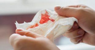 نزول دم من الفم , ماهي اسباب خروج الدم من الفم