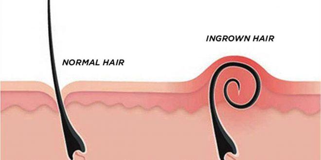 صورة التخلص من الشعر تحت الجلد , اخفي جلد الوزة الي الابد بوصفات طبيعية جدا وسهلة