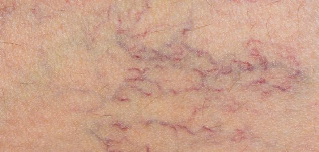 صورة علاج الشعيرات الدموية في الفخذ , اسباب ظهورها و علاجها