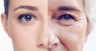 صورة طرق لزيادة الكولاجين لكي تحصلي بشرة رائعه , زيادة الكولاجين في الوجه